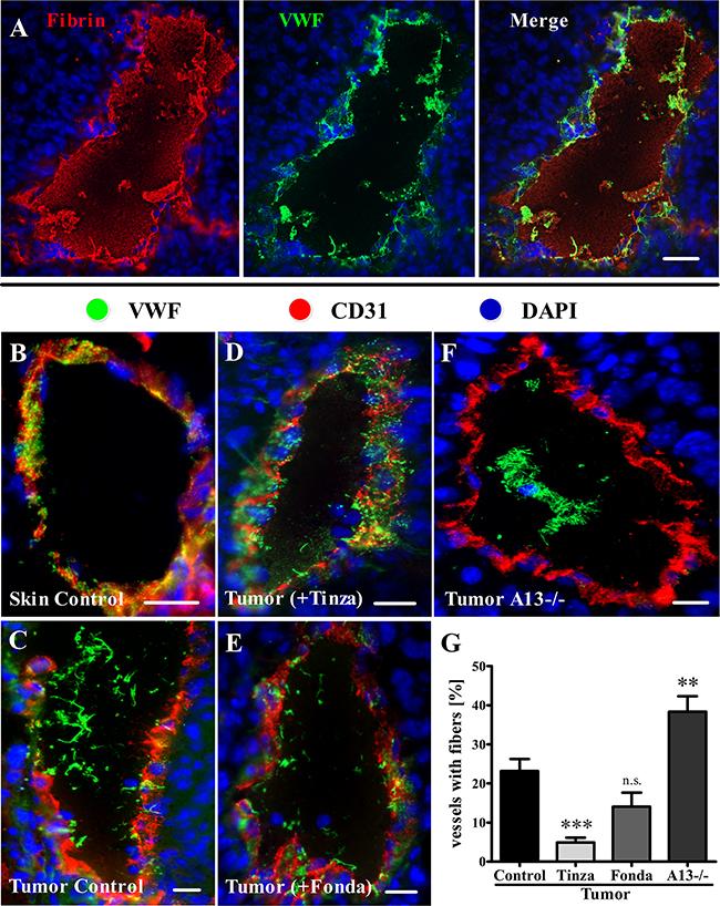Tinzaparin reduces VWF fiber generation in tumor blood vessels more efficiently than Fondaparinux.