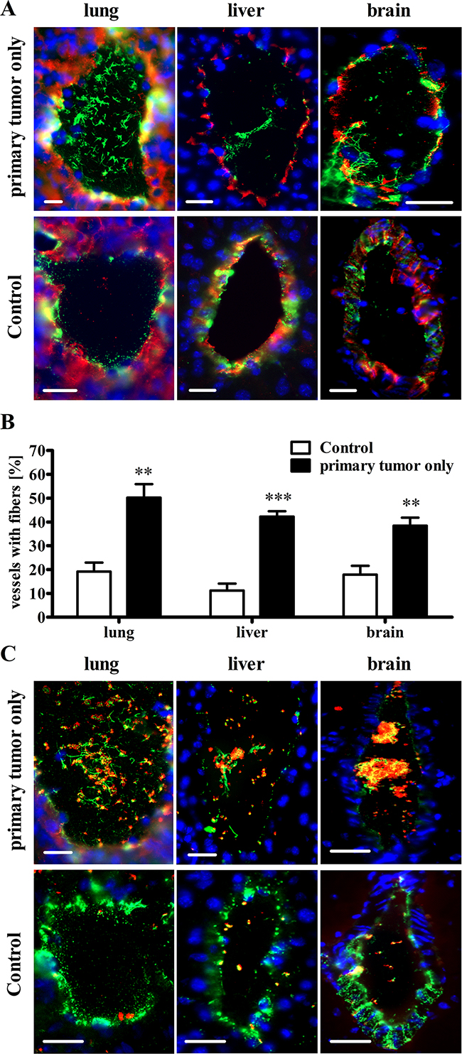 The primary tumor mediates activation of the vascular endothelium and VWF fiber formation in the microvasculature of distal organs without metastases.