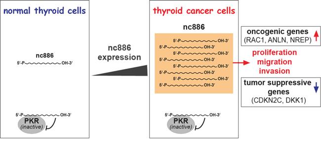 Summary cartoon for nc886's role in thyroid cancer.