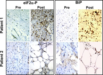 TRO induces phosphorylation of eIF2α in human liposarcoma tumors.