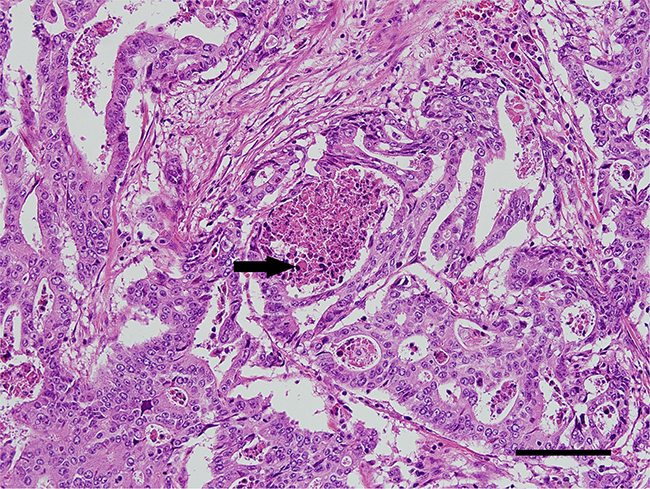 A representative immunohistochemistry image of POLE-mutated colorectal cancer.