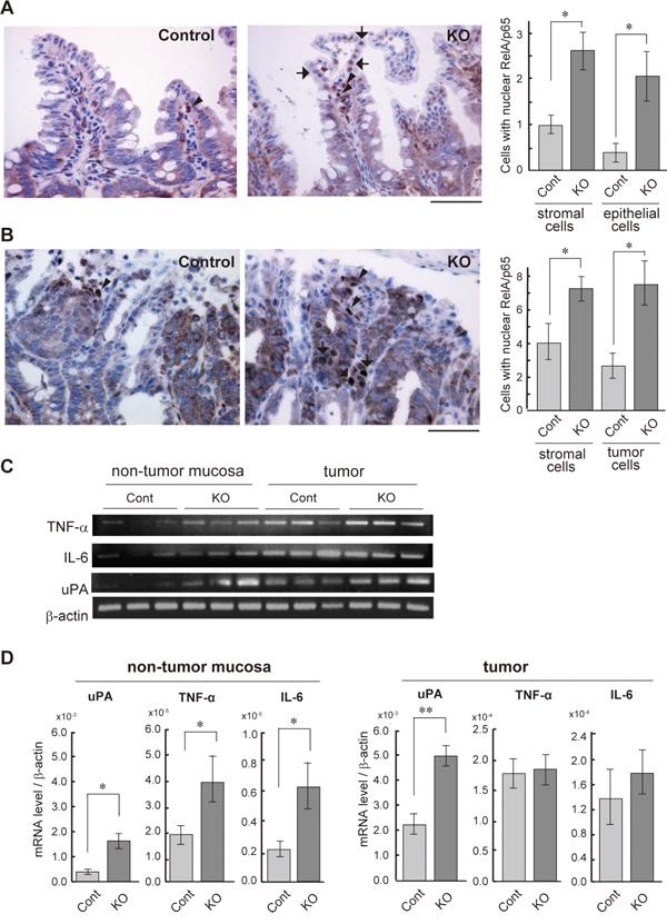 NF-κB activation status of the HAI-1-deficient intestine.