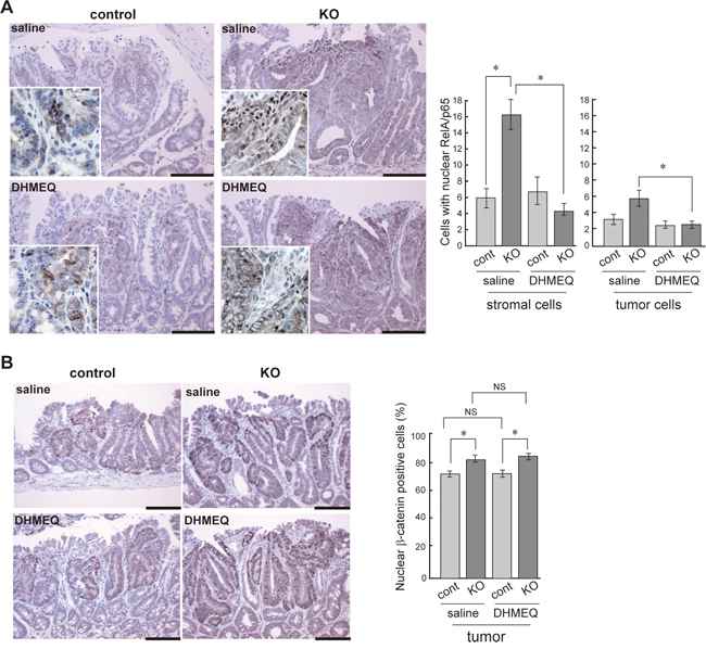 Effect of DHMEQ on nuclear translocation of RelA/p65 and β-catenin in HAI-1-deficient ApcMin/+ mice tumor.
