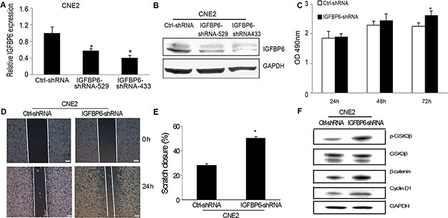 IGFBP6 knockdown in CNE2 cells promotes cell proliferation and invasion