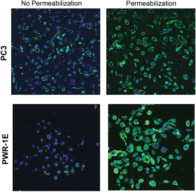 Prostate cancer cells overexpress LLT1 on the cell surface as compared to intracellular LLT1 expression in normal prostate cells.