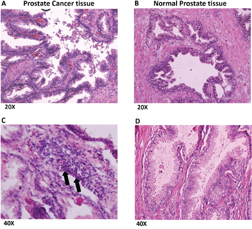 Prostate cancer tissues show numerous infiltrating lymphocytes.