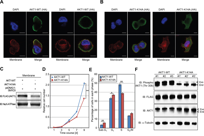 Methylation of AKT1 at lysine 14 promotes plasma membrane recruitment and proliferation of cancer cells.