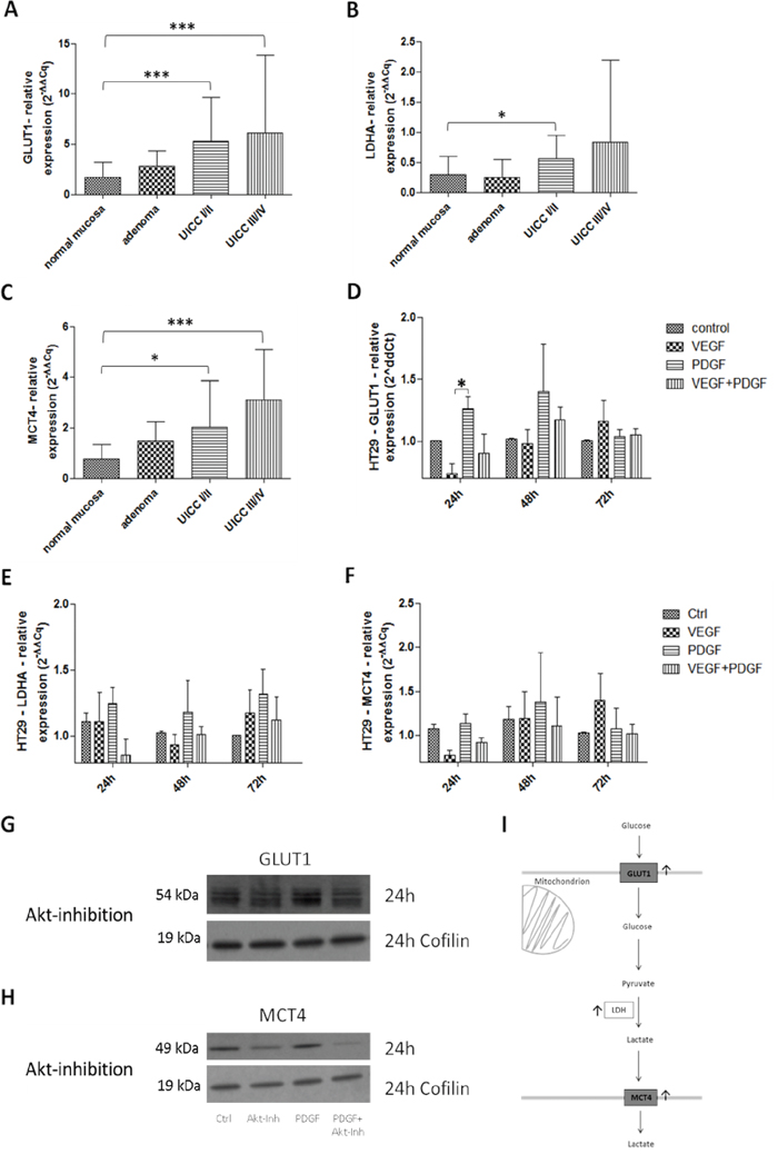 Influence of PDGF on glycolysis in human colon cancer probes and in HT29 cell line I.