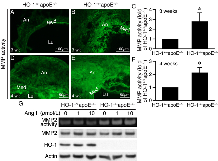 Lack of HO-1 enhances MMP activity in AAAs and VSMCs.