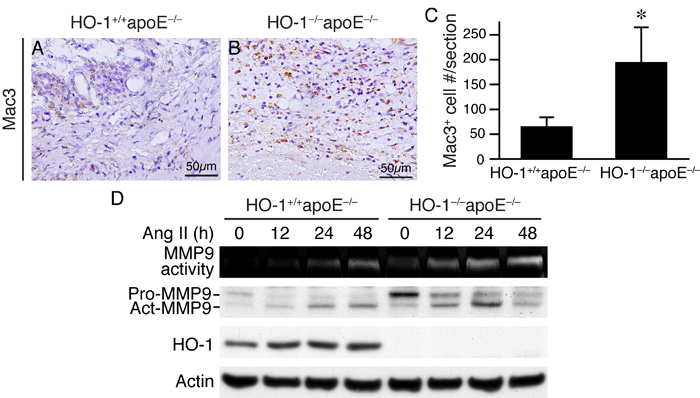 An absence of HO-1 enhances macrophage infiltration in AAAs and MMP9 activity in macrophages.