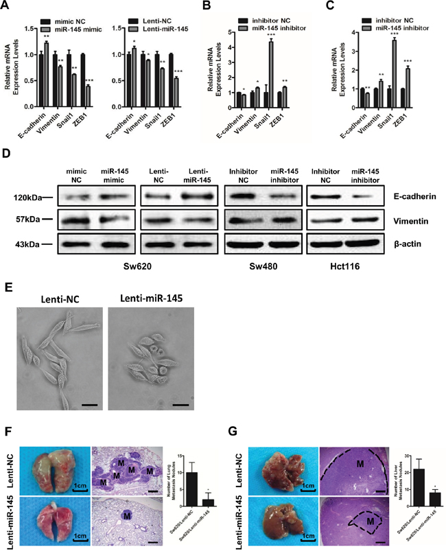 MiR-145 inhibits EMT and the invasion and metastasis of CRC cells in vivo.