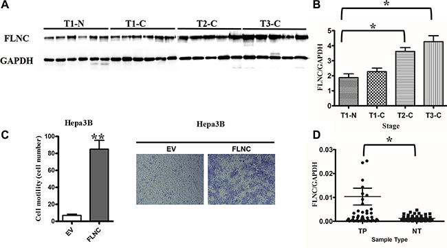 Validation of FLNC's expression pattern and function in cell migration.