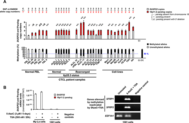 Copy number and methylation status of DUSP22 and its 16p11.2 paralog in anaplastic large T-cell lymphomas.