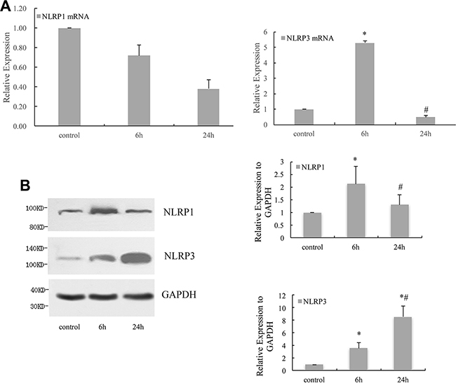 NLRP1 and NLRP3 expressed in HPDLCs in response to cyclic stretch.