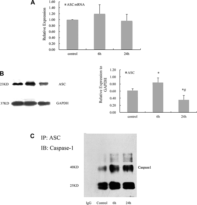 Cyclic stretch promoted the formation and activation of inflammasome in HPDLCs.