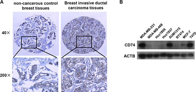 CD74 distribution in tissues and expression in breast cancer cell lines.