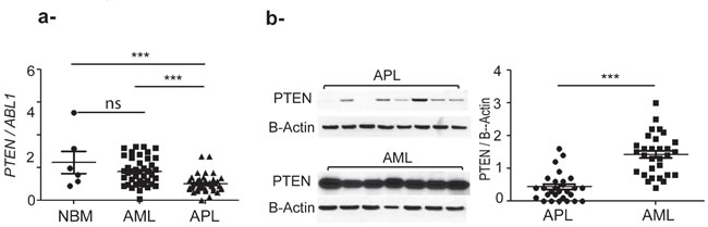 PTEN expression is significantly higher in primary AML compared to APL and normal bone marrow (NBM) samples.