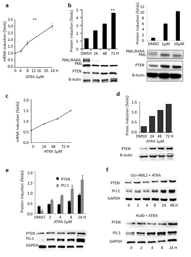 Effect of ATRA, ATO and PML/RARA on PTEN expression.