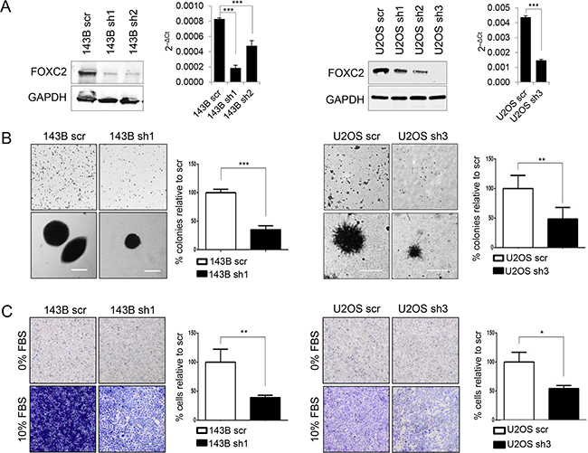 FOXC2 silencing diminishes anchorage-independent growth and metastasis.