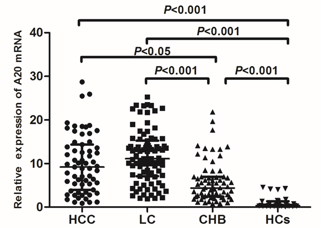 The comparison of A20 mRNA level among different progression of hepatitis B infection.