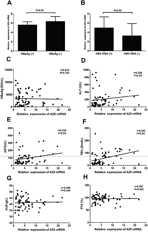 Correlation between relative expression of A20 mRNA and clinical parameters of patients with chronic hepatitis B.