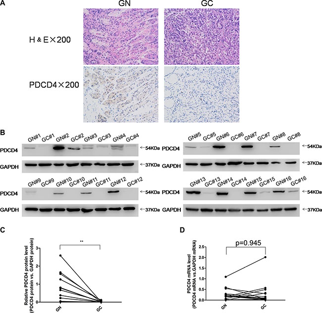 Expression patterns of PDCD4 in human gastric cancer tissues.