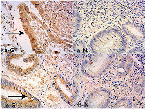Expression of GOLPH3 in rectal tissues.