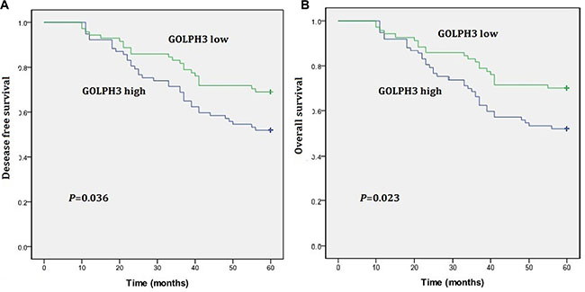 Kaplan-Meier estimates of disease-free survival (DFS) and overall survival (OS) rates in relation to GOLPH3 status.