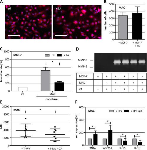 Characterization of ZA-treated human macrophages (MAC).
