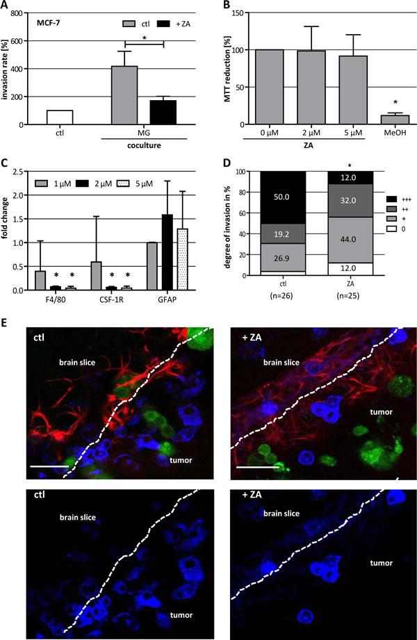 ZA decreases microglia (MG)-induced invasiveness of MCF-7 cells.