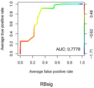 ROC curves of RBsig on all breast cancer cell lines.