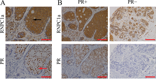 RNPC1 expression correlated with PR in breast cancer tissues.