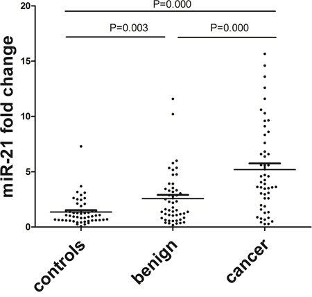 Relative fold change of serum miR-21 in endometrial cancer patients (n = 50), benign lesion patients (n = 50) and healthy controls (n = 50).