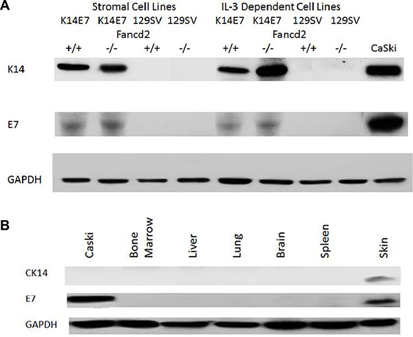 Detection of K14 and E7 proteins by Western blot in fresh tissues and in bone marrow stromal and IL-3 dependent cell lines derived from K14E7Fancd2−/− mice LTBMCs.