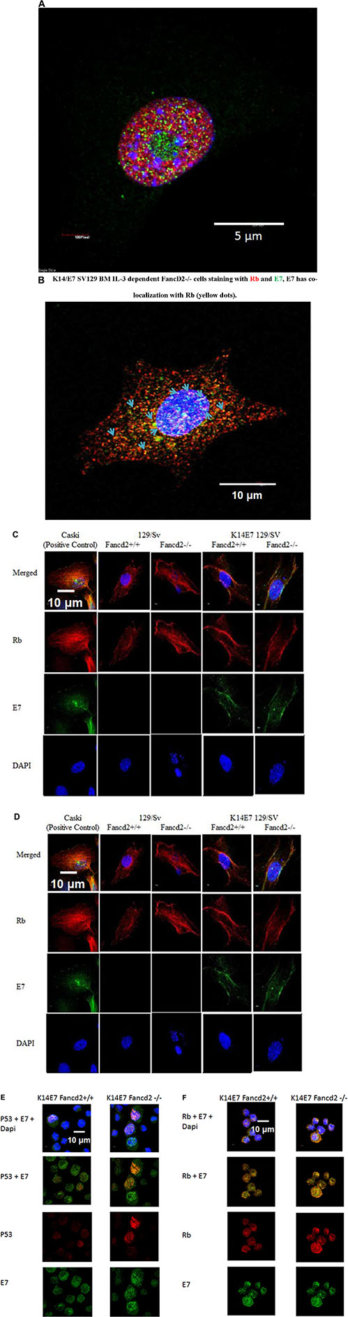 Detection of HPV E7 with p53 and Rb in the nucleus and cytoplasm of K14E7 Fancd2−/− stromal and hematopoietic cell lines.