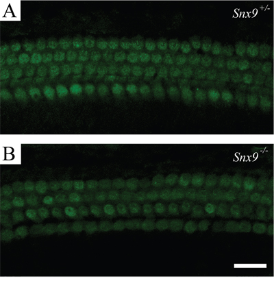 Hair cells of Snx9 knockout mice are functionally normal.
