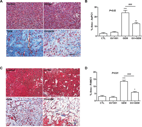 Changes of fibrosis in xenograft PDAC tumor among the different treatment groups.