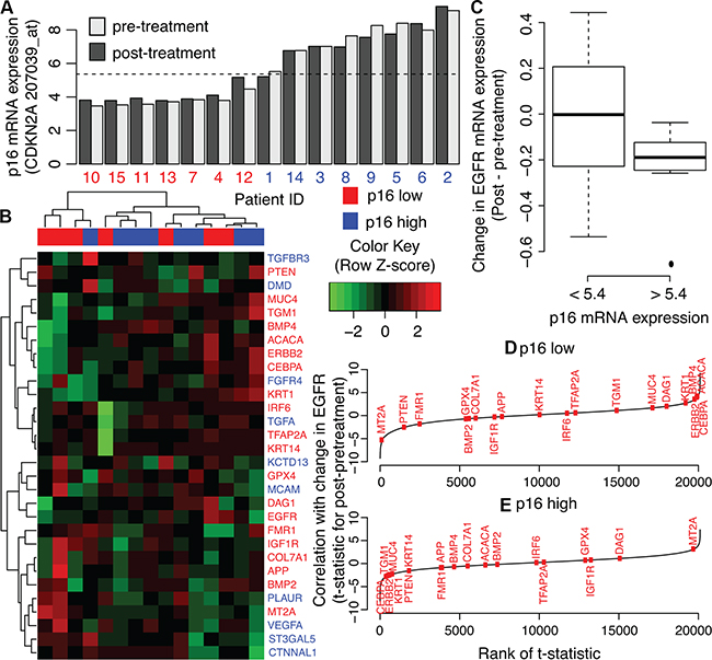 AP-2alpha gene expression signature in human HNSCC pre and post cetuximab treatment biopsies.