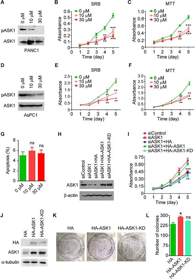 The kinase activity is required for ASK1 to regulate pancreatic cancer cell proliferation.