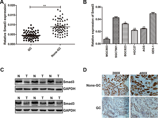 Smad3 was down-regulated in GC tissues and cells.