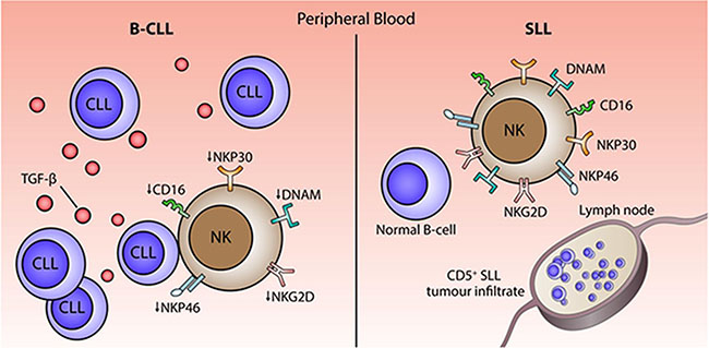 Model of the potential mechanisms that underlie impairment of NK cytotoxicity in patients with B-CLL.