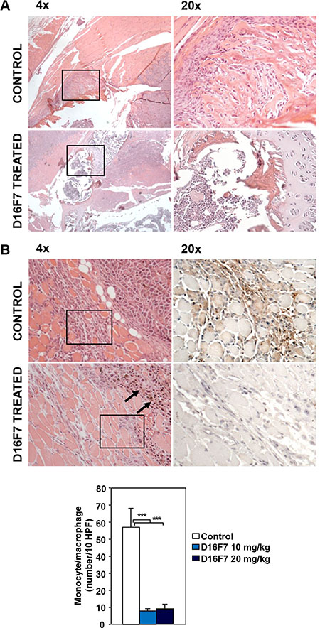 Treatment with D16F7 mAb inhibits bone infiltration by tumor cells and monocyte/macrophage infiltration at the tumor border.