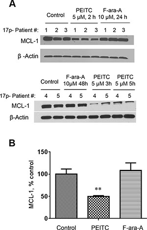 Decrease of MCL-1 protein induced by PEITC in CLL cells with 17p-deletion.