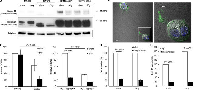 Integrin β1 functionality was essential for col-I adhesion and col-I SF by colon cancer cells after X-radiation.