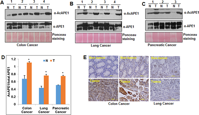 Elevated levels of AcAPE1 in tumor tissue.