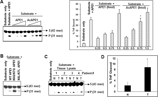 Acetylation of APE1 enhances its AP-endonuclease activity and tumor tissues have higher AP-endonuclease activity.