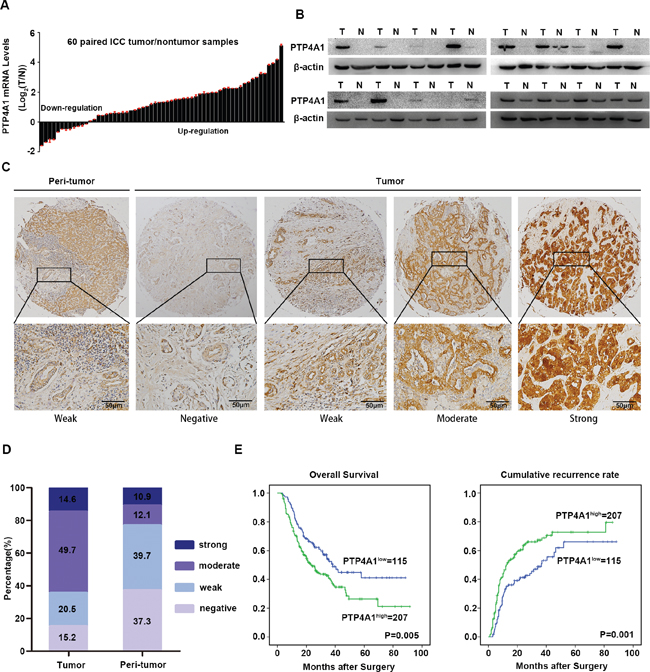 Expression pattern and clinical implications of PTP4A1 in ICC.