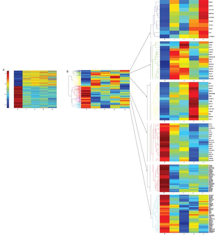 Hierarchical clustering of the 245 proteins/genes expressed significantly different between CRC and normal mucosa.