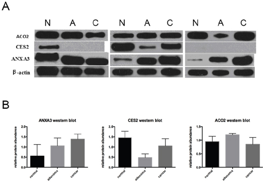 Western blot analysis of ACO2, CES2 and ANXA3.