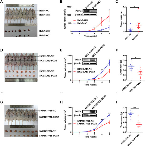 PON3 suppresses tumor growth in vivo.